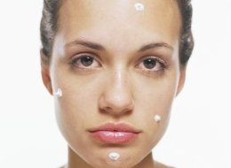 s-acne-large.jpg